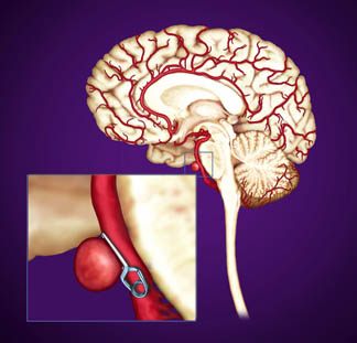 brain aneurysm treatment in Pune