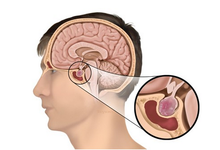 Pituitary Adenomas Treatment