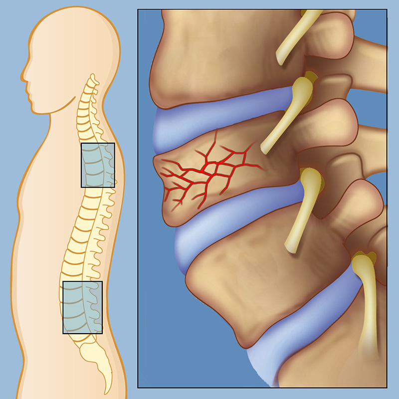 Spinal Fracture or Vertebral Compression Fracture Treatment In Pune